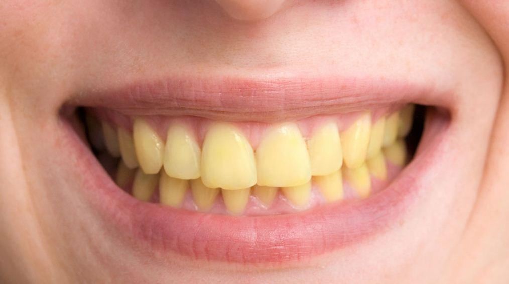 ما سبب اصفرار الأسنان